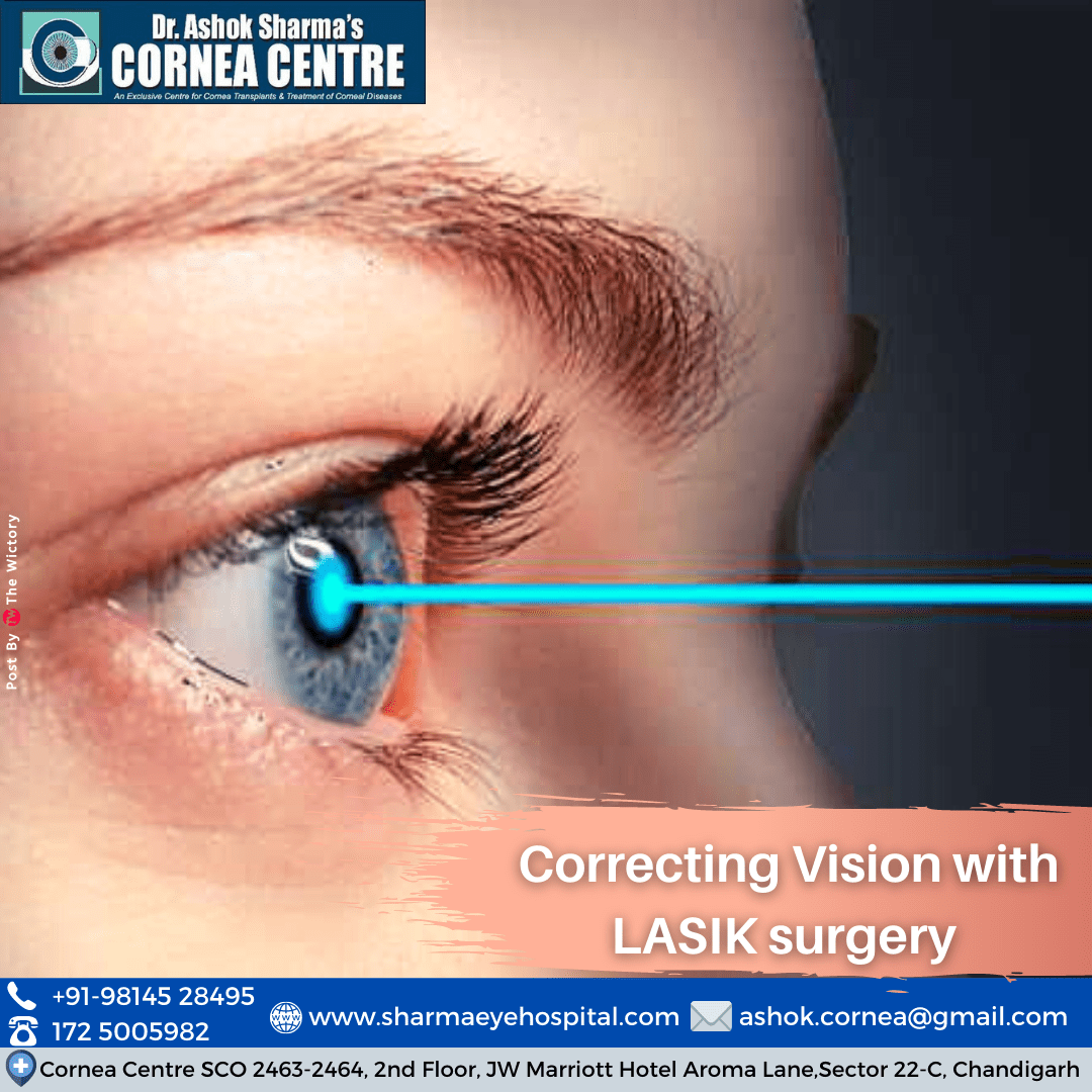 Correcting Vision with LASIK surgery